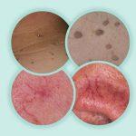 Advanced Cosmetic Electrolysis